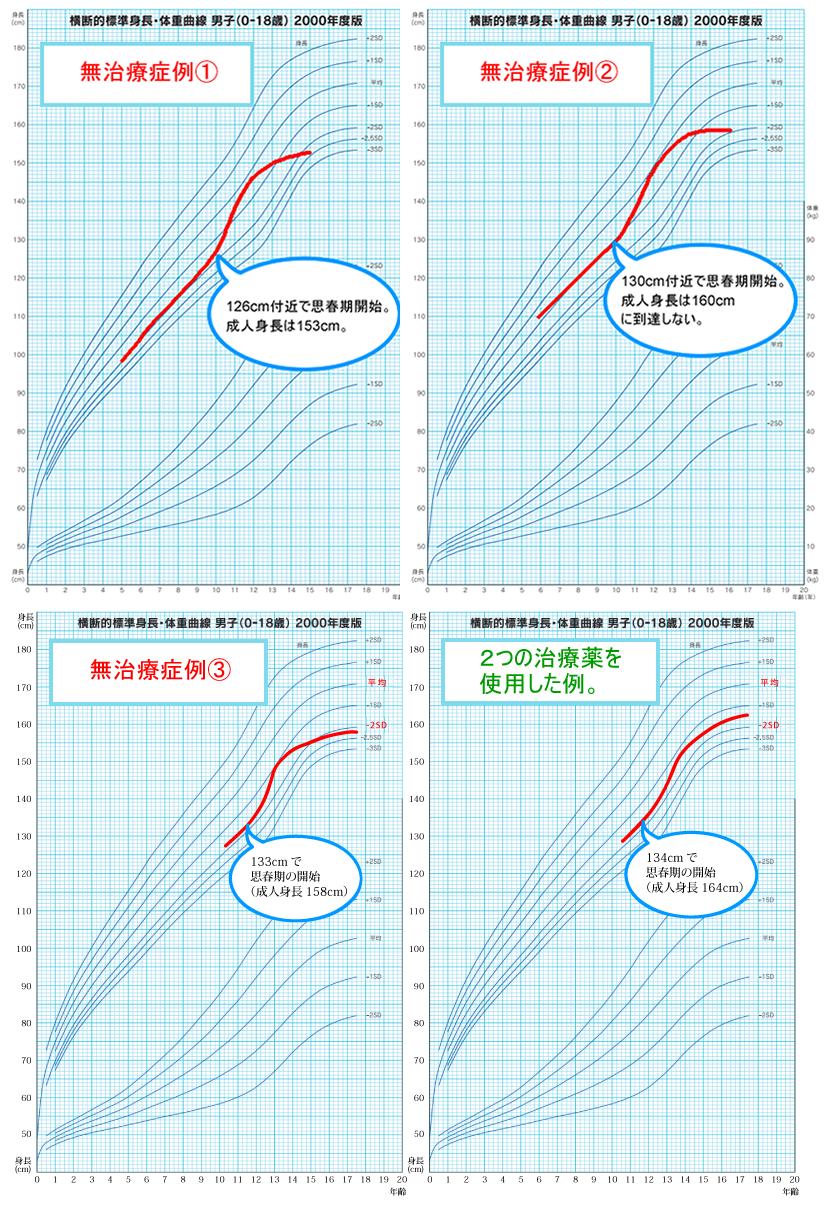 低身長の治療時と無治療時の比較グラフ図